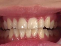 Japanese girl's mouth and teeth inspection 2